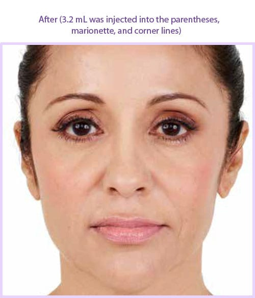 San Diego Med Spa Juvederm-xc-after