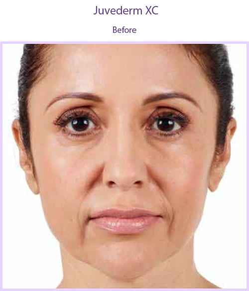 San Diego Med Spa Juvederm-xc-before